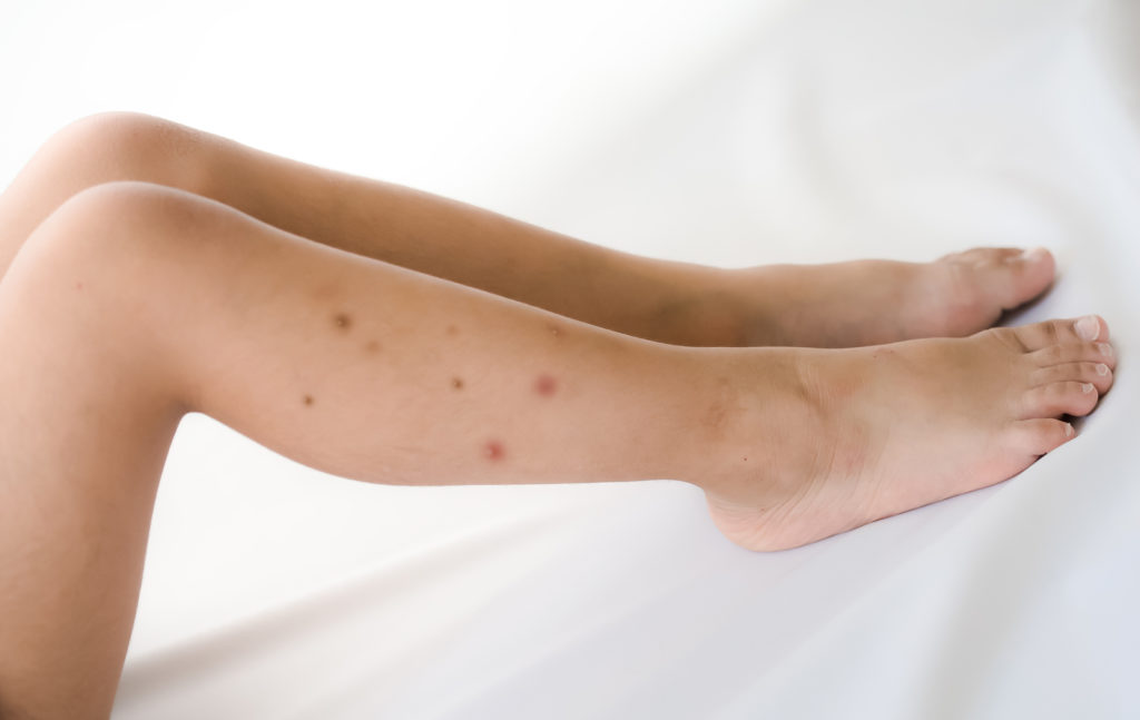 Do You Have Bed Bugs: 4 Sure Signs